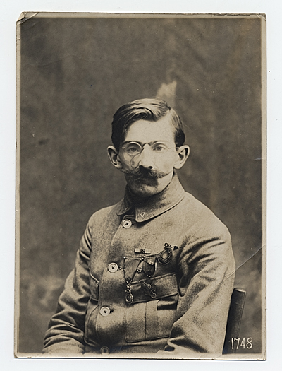 WWI soldier facial reconstruction documentation photograph