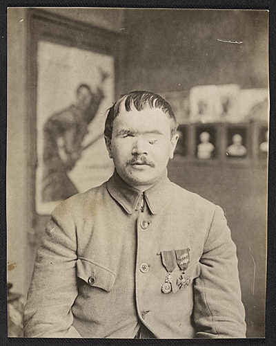 A World War I soldier before facial reconstruction