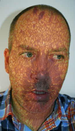 John O'Connor, Self Portrait with Sun Spots, April 18, 2013. Image courtesy of the artist and Pierogi Gallery, Brooklyn, NY. Used with Permission.